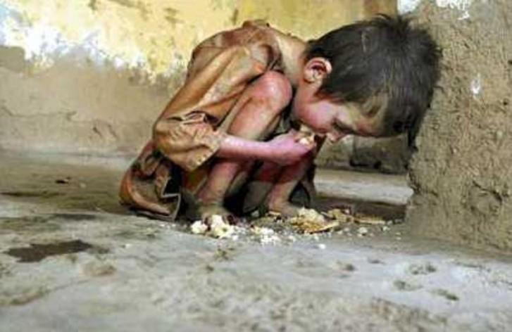 Criança branca com fome